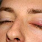 remède grand mère oeil gonflé